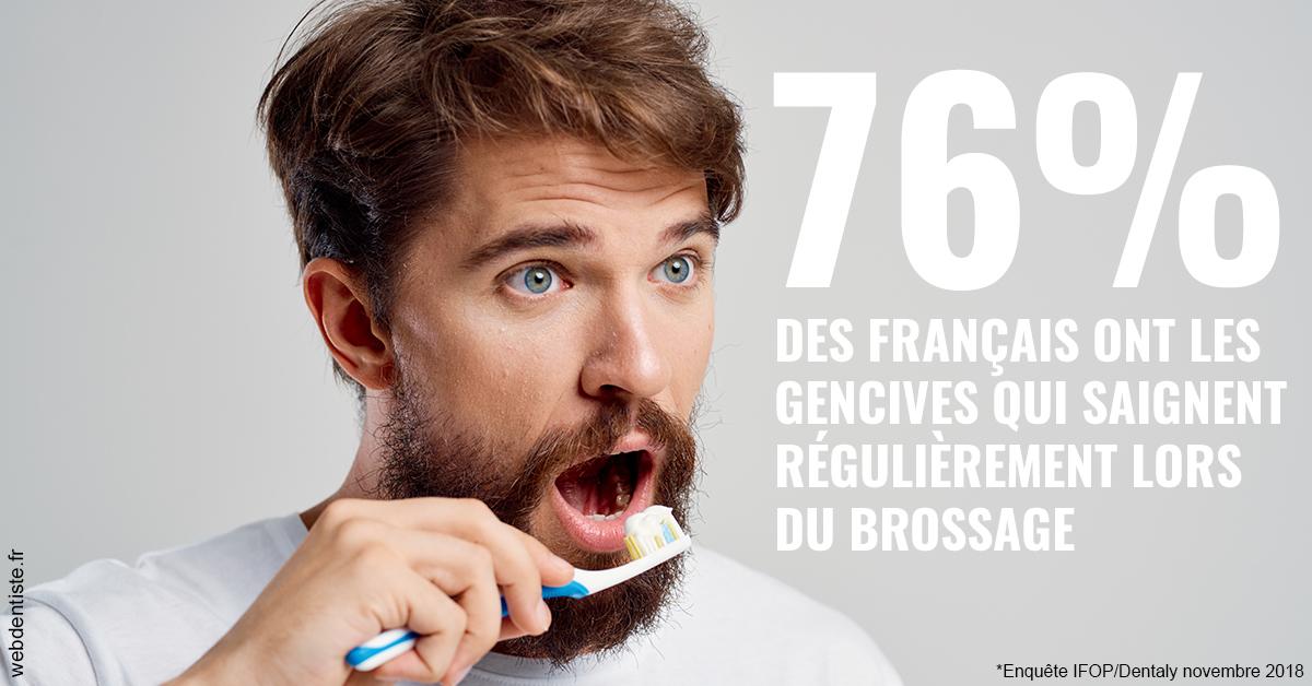 https://dr-ricci-anne-marie.chirurgiens-dentistes.fr/76% des Français 2