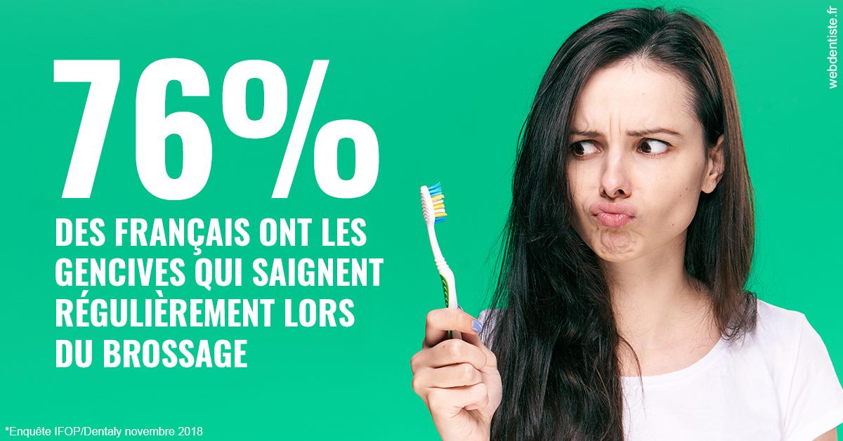 https://dr-ricci-anne-marie.chirurgiens-dentistes.fr/76% des Français 1